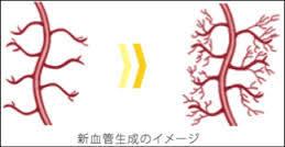 ED1000による血管再生イメージ