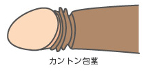 カントン包茎